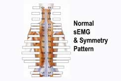Normal Surface Electromyography Scan & Symmetry Pattern